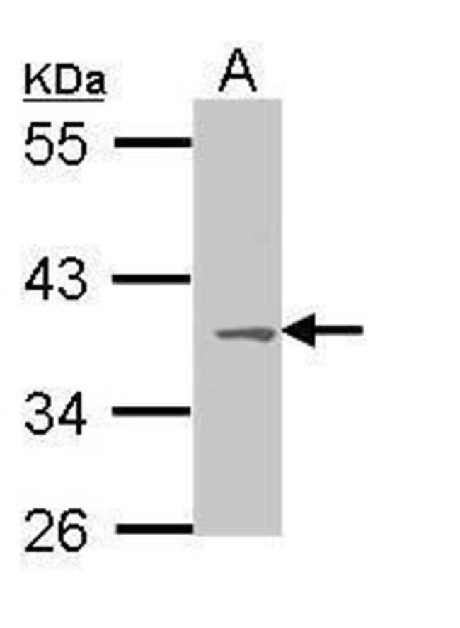 MC1R Rabbit anti-Human, Mouse, Polyclonal, Invitrogen 100 µL; Unconjugated