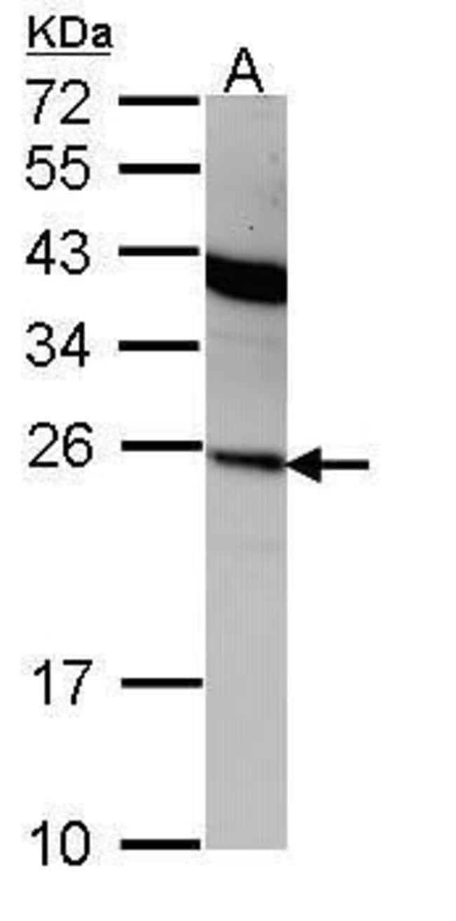 Interferon alpha-2 Rabbit anti-Human, Polyclonal, Invitrogen 100 µL;