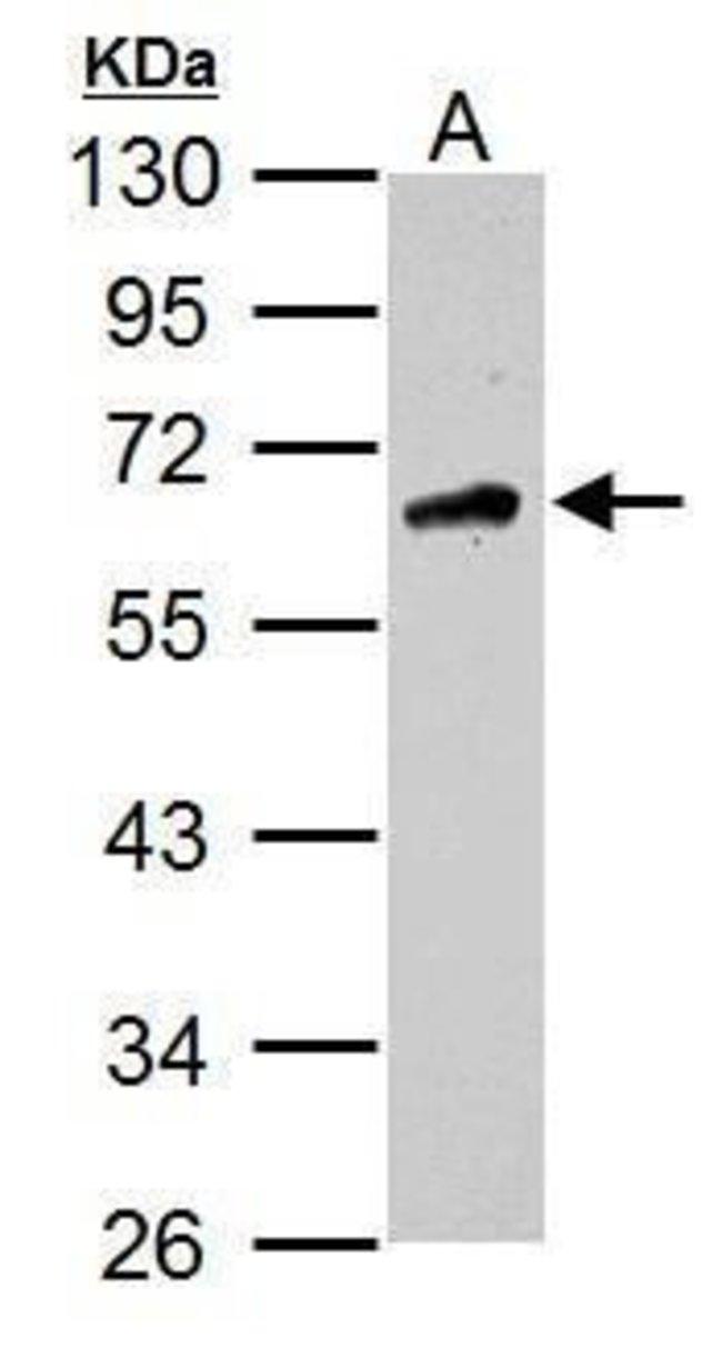 CaMKK beta Rabbit anti-Human, Polyclonal, Invitrogen™ 100 μL; Unconjugated Primary Antibodies Cam to Car