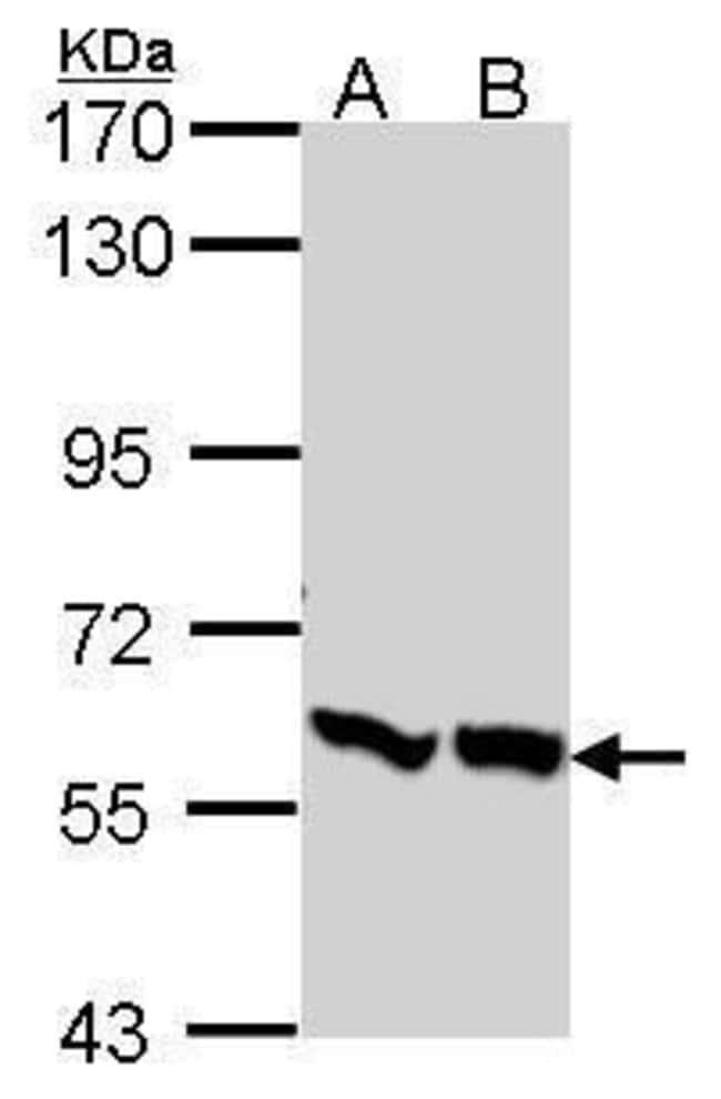 PFKFB3 Rabbit anti-Human, Polyclonal, Invitrogen 100 µL; Unconjugated