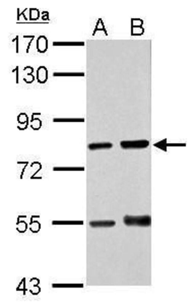 RED Rabbit anti-Human, Polyclonal, Invitrogen 100 µL; Unconjugated