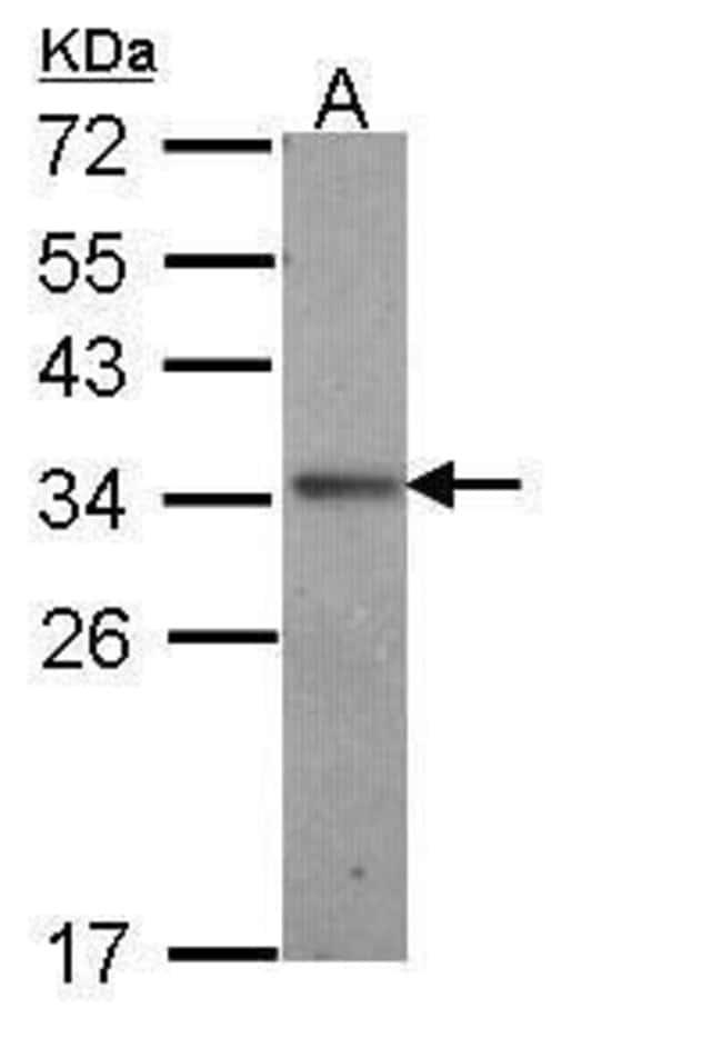 IL24 Rabbit anti-Human, Polyclonal, Invitrogen 100 µL; Unconjugated