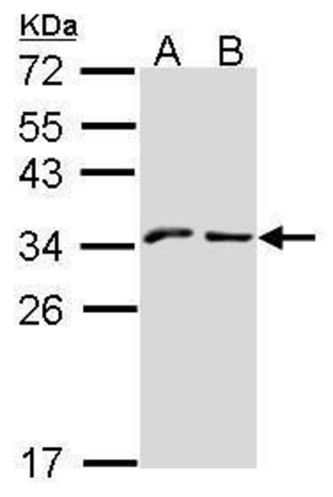 NKG2A Rabbit anti-Human, Polyclonal, Invitrogen 100 µL; Unconjugated