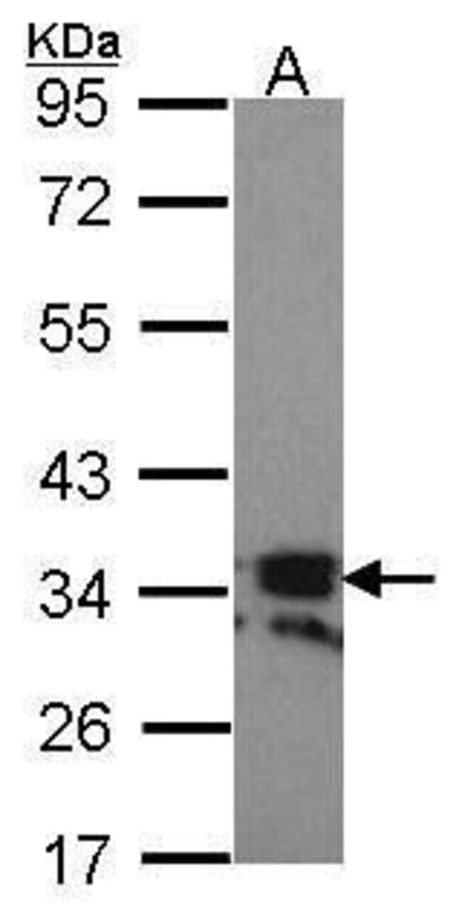 CD254 (RANK Ligand) Rabbit anti-Human, Polyclonal, Invitrogen 100 µL;