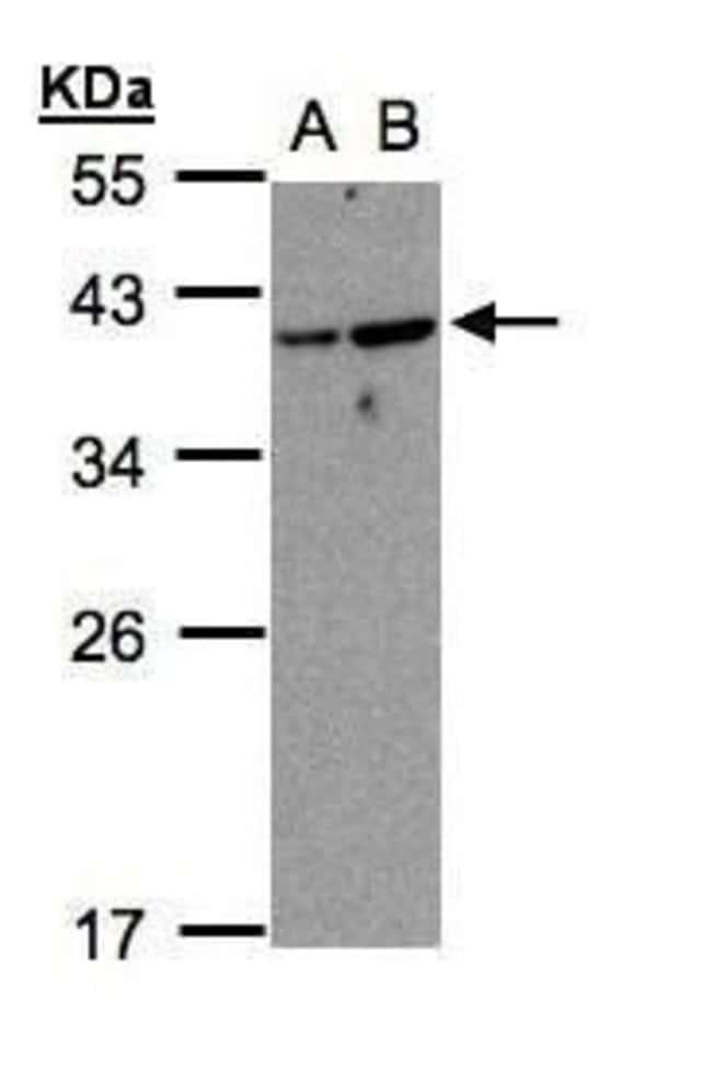 ARF7 Rabbit anti-Human, Polyclonal, Invitrogen 100 µL; Unconjugated