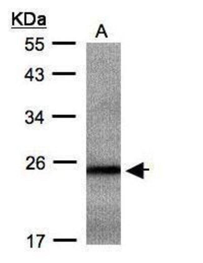 RAB2B Rabbit anti-Human, Mouse, Polyclonal, Invitrogen 100 µL; Unconjugated