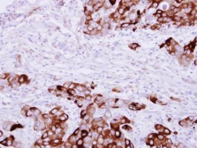 Fibrinogen gamma Rabbit anti-Human, Polyclonal, Invitrogen 100 µL;