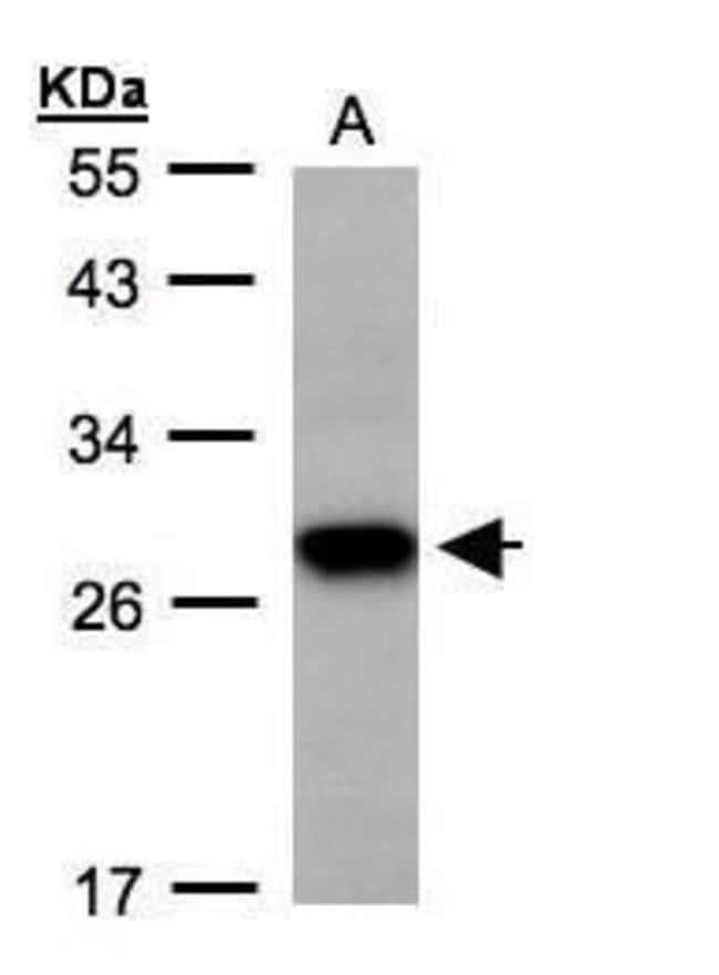 TSPAN1 Rabbit anti-Human, Polyclonal, Invitrogen 100 µL; Unconjugated