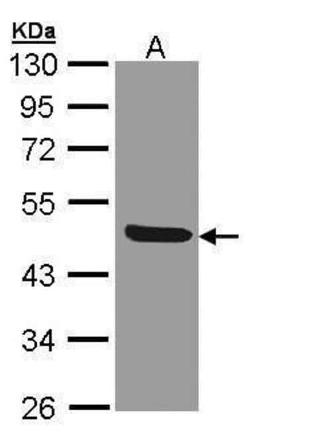 IL1R2 Rabbit anti-Human, Polyclonal, Invitrogen 100 µL; Unconjugated