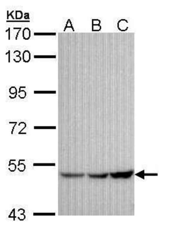 Kir3.1 (KCNJ3) Rabbit anti-Human, Mouse, Polyclonal, Invitrogen 100 µL;