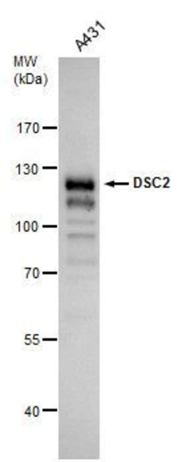 Desmocollin 2 Rabbit anti-Human, Polyclonal, Invitrogen 100 µL; Unconjugated
