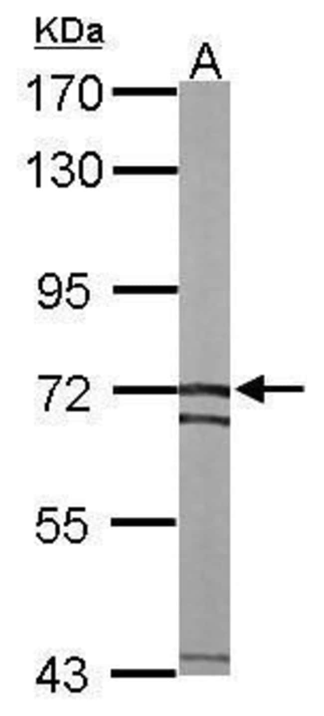 SLC25A13 Rabbit anti-Human, Mouse, Polyclonal, Invitrogen 100 µL;