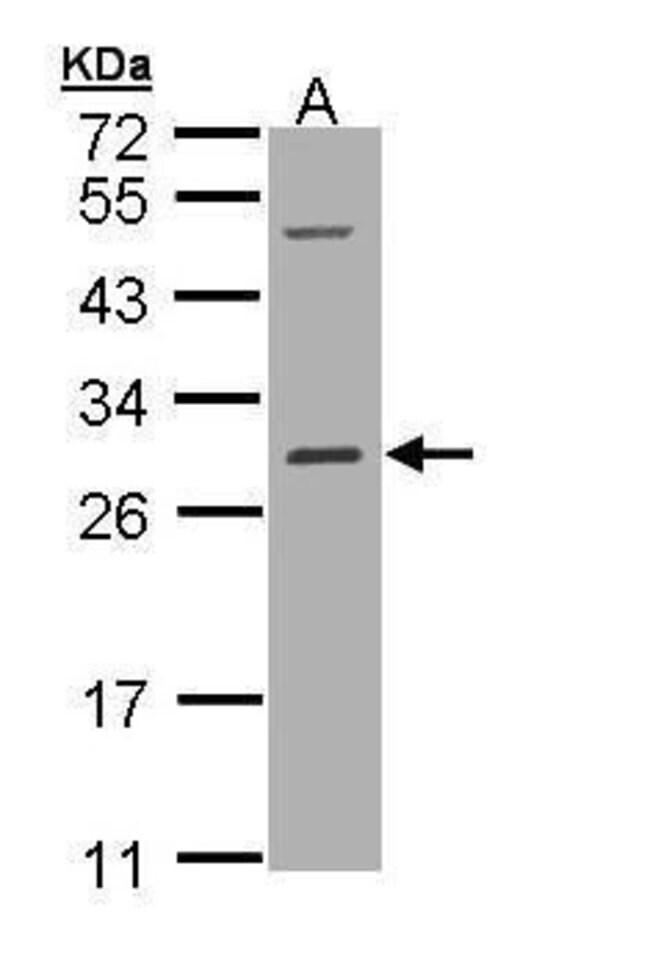 RALB Rabbit anti-Human, Polyclonal, Invitrogen 100 µL; Unconjugated