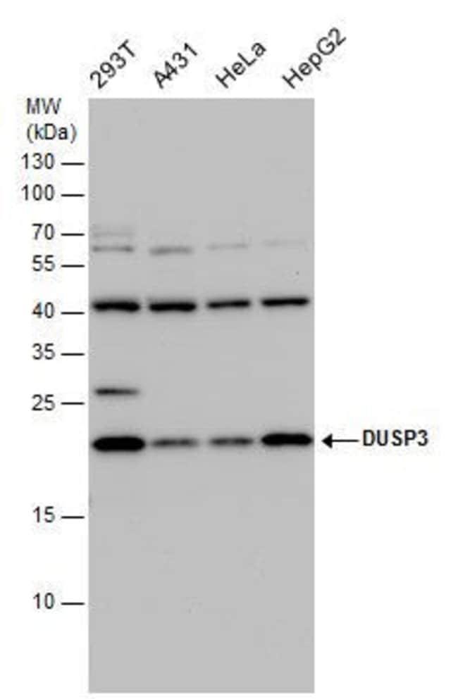 DUSP3 Rabbit anti-Human, Mouse, Polyclonal, Invitrogen 100 µL; Unconjugated