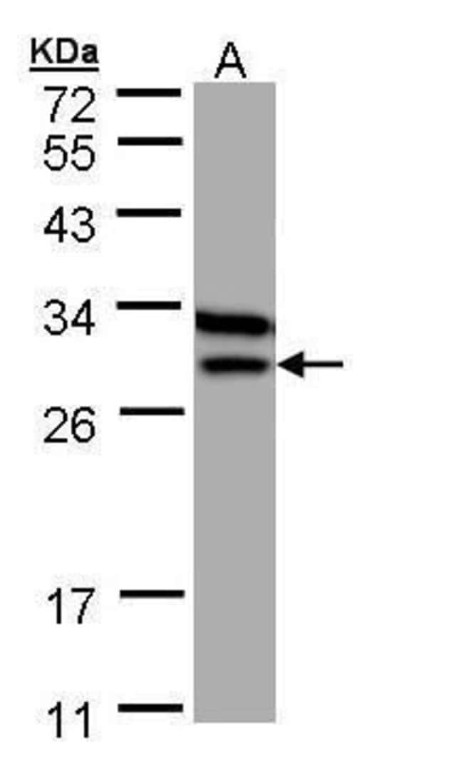ETFB Rabbit anti-Human, Mouse, Polyclonal, Invitrogen 100 µL; Unconjugated