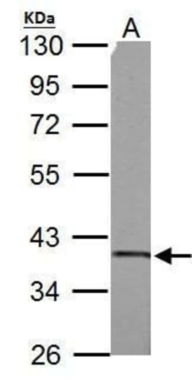 SUCLG1 Rabbit anti-Human, Mouse, Rat, Polyclonal, Invitrogen 100 µL;