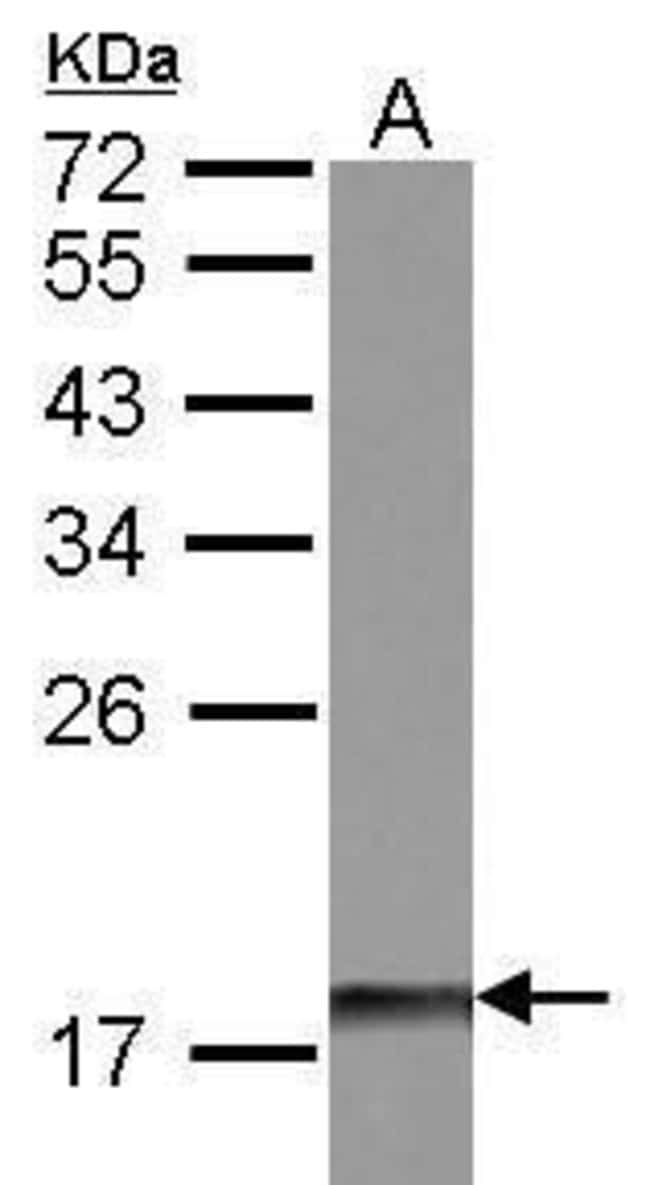 DUSP26 Rabbit anti-Human, Mouse, Polyclonal, Invitrogen 100 µL; Unconjugated
