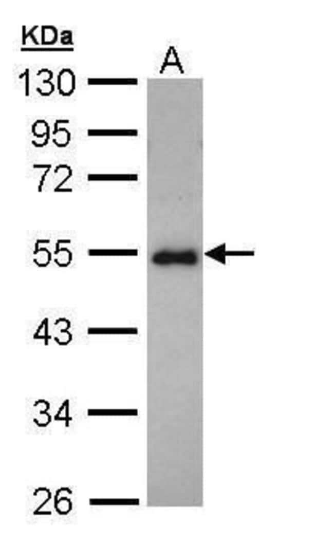CCDC83 Rabbit anti-Human, Polyclonal, Invitrogen 100 µL; Unconjugated