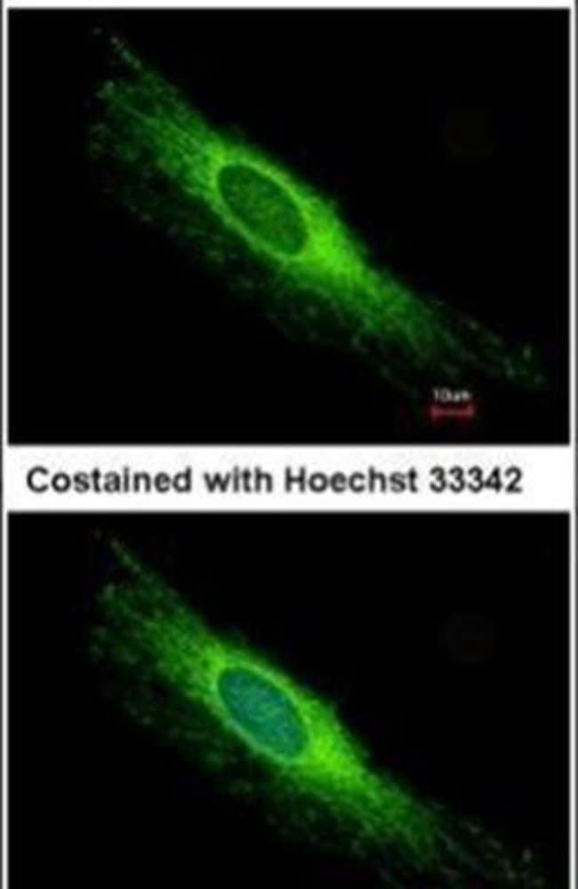 PEX26 Rabbit anti-Human, Polyclonal, Invitrogen 100 µL; Unconjugated