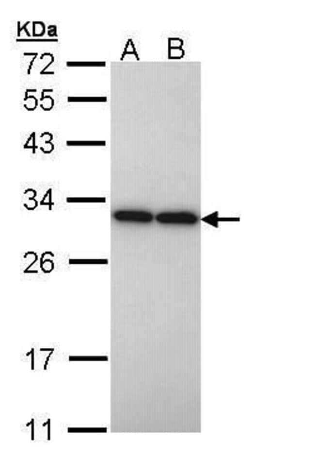 PGAM2 Rabbit anti-Human, Rat, Polyclonal, Invitrogen 100 µL; Unconjugated