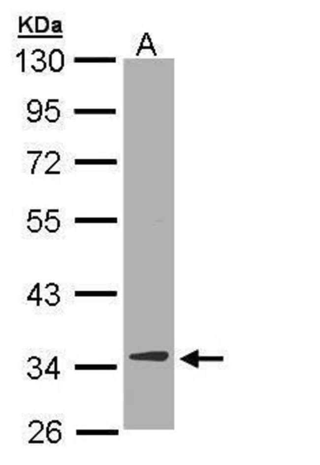 DECR1 Rabbit anti-Human, Mouse, Polyclonal, Invitrogen 100 µL; Unconjugated
