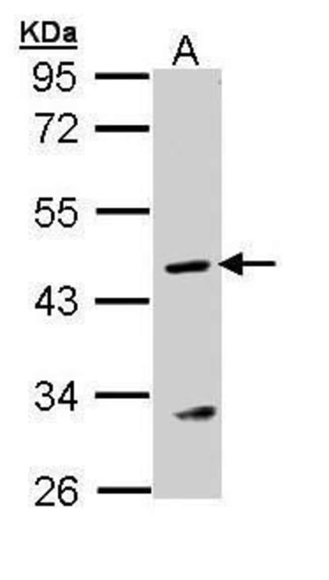 ASL Rabbit anti-Human, Polyclonal, Invitrogen 100 µL; Unconjugated