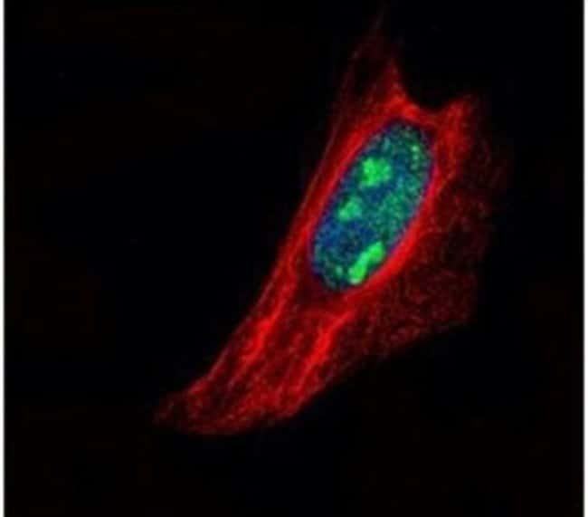 TSPYL1 Rabbit anti-Human, Polyclonal, Invitrogen 100 µL; Unconjugated