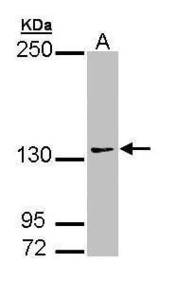 AUTS2 Rabbit anti-Human, Mouse, Polyclonal, Invitrogen 100 µL; Unconjugated