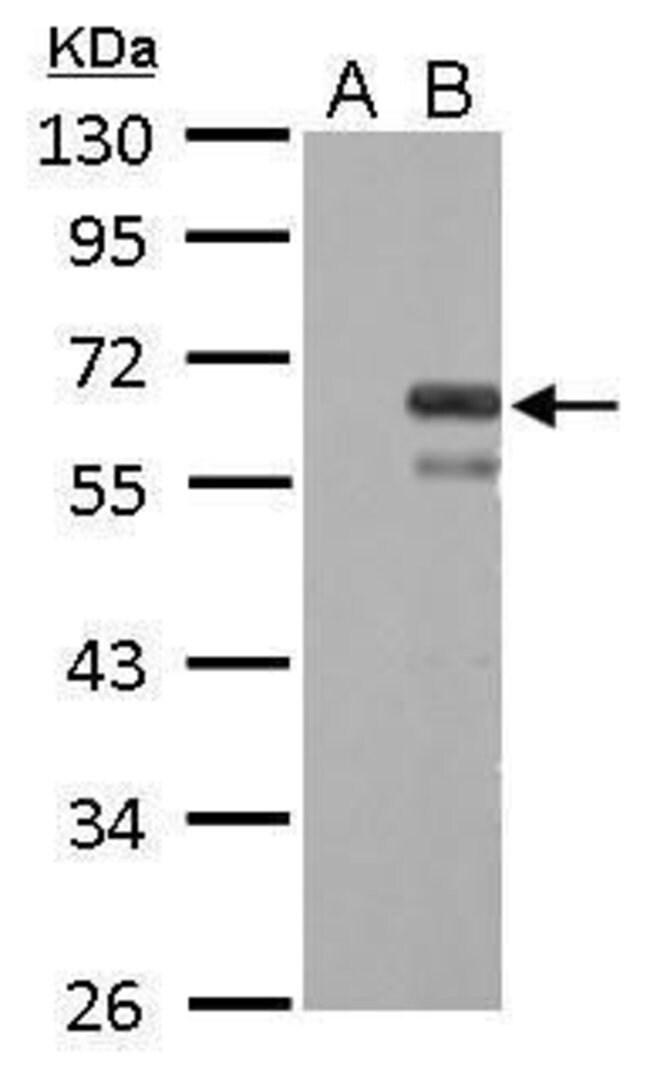 Factor X Rabbit anti-Human, Polyclonal, Invitrogen 100 µL; Unconjugated