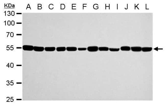 alpha Tubulin Rabbit anti-Drosophila, Human, Mouse, Non-human primate,