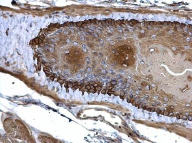 Cytokeratin 13 Rabbit anti-Human, Polyclonal, Invitrogen 100 µL; Unconjugated