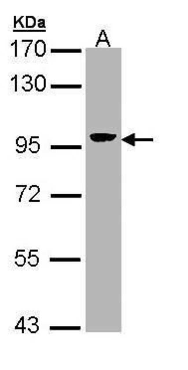 Villin Rabbit anti-Human, Mouse, Rat, Polyclonal, Invitrogen 100 µL;