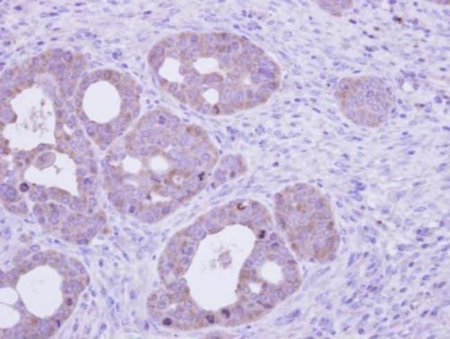 Golgi protein 58k Rabbit anti-Human, Mouse, Polyclonal, Invitrogen 100