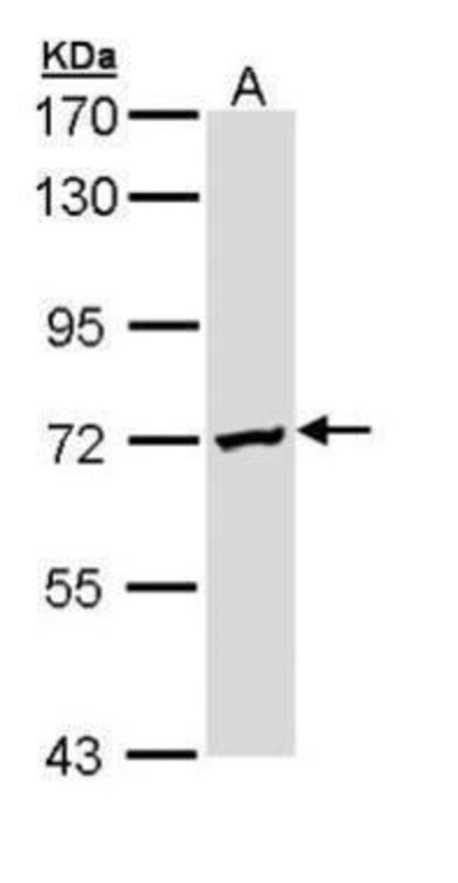 DAZ2 Rabbit anti-Human, Polyclonal, Invitrogen 100 µL; Unconjugated