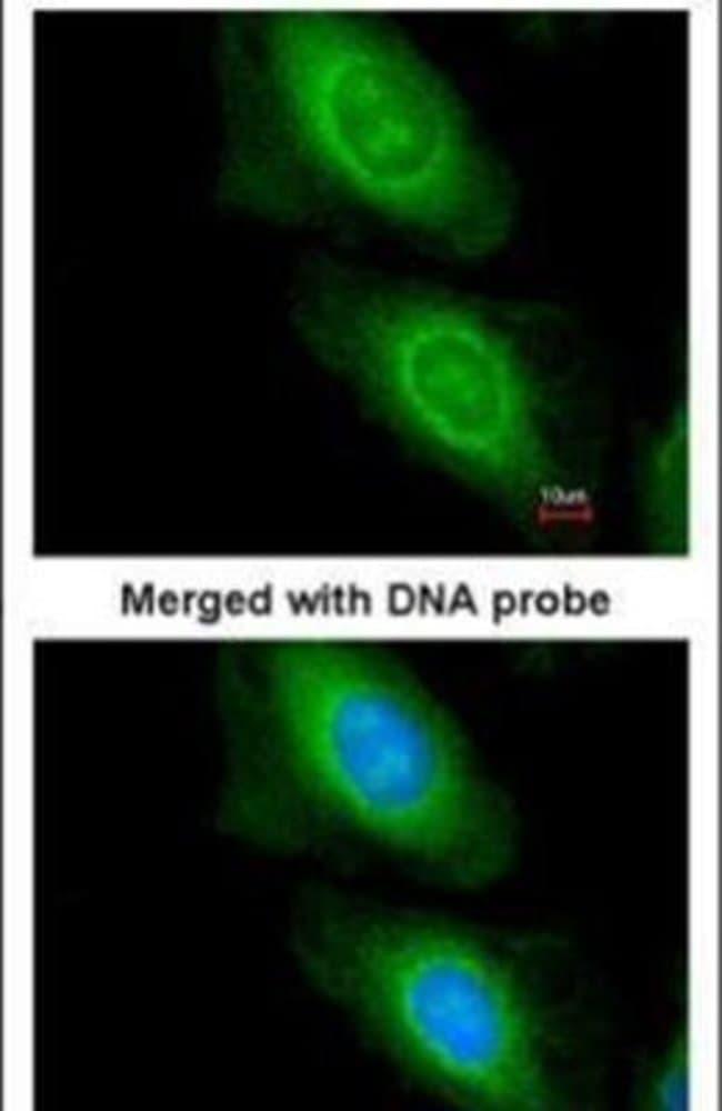 MCD Rabbit anti-Human, Mouse, Polyclonal, Invitrogen 100 µL; Unconjugated