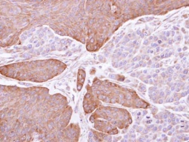 EPHX1 Rabbit anti-Human, Polyclonal, Invitrogen 100 µL; Unconjugated