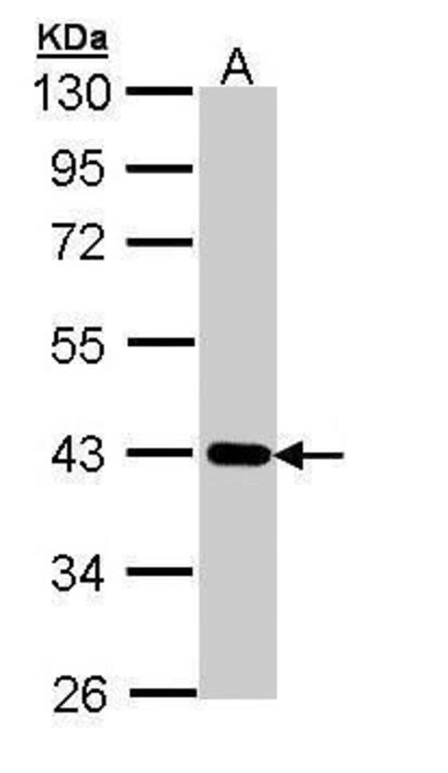 CRTAP Rabbit anti-Human, Polyclonal, Invitrogen 100 µL; Unconjugated