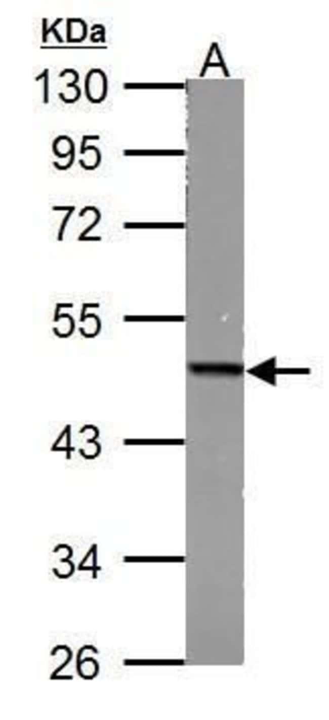Fumarase Rabbit anti-Human, Mouse, Rat, Polyclonal, Invitrogen 100 µL;