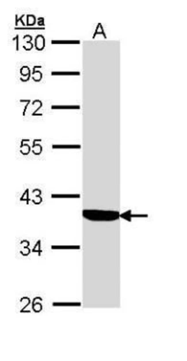 SERPINA6 Rabbit anti-Human, Polyclonal, Invitrogen 100 µL; Unconjugated