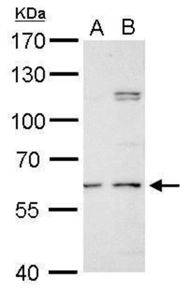 GALNS Rabbit anti-Human, Mouse, Rat, Polyclonal, Invitrogen 100 µL;