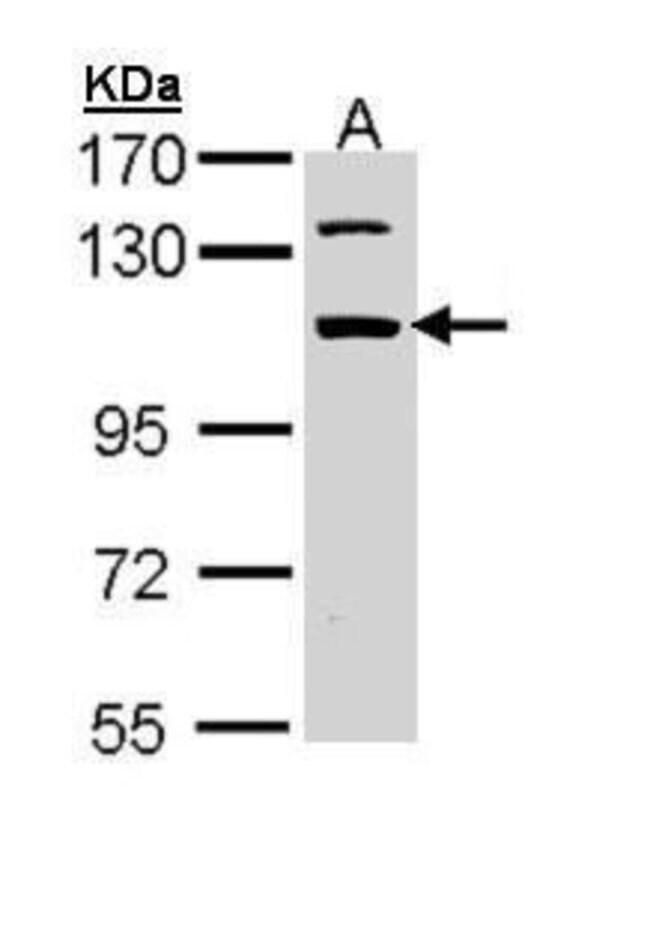 RBM28 Rabbit anti-Human, Polyclonal, Invitrogen 100 µL; Unconjugated