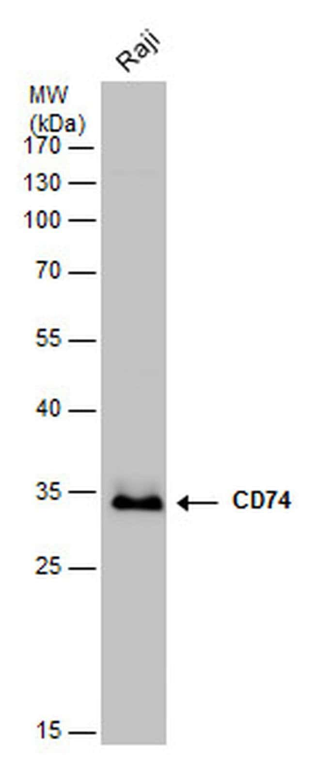 CD74 Rabbit anti-Human, Mouse, Rat, Polyclonal, Invitrogen 100 µL;