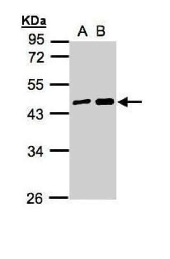 MAGEA11 Rabbit anti-Human, Polyclonal, Invitrogen 100 µL; Unconjugated