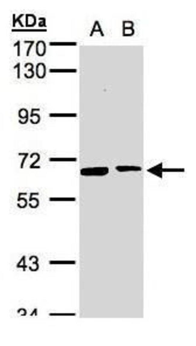 SENP2 Rabbit anti-Human, Polyclonal, Invitrogen 100 µL; Unconjugated