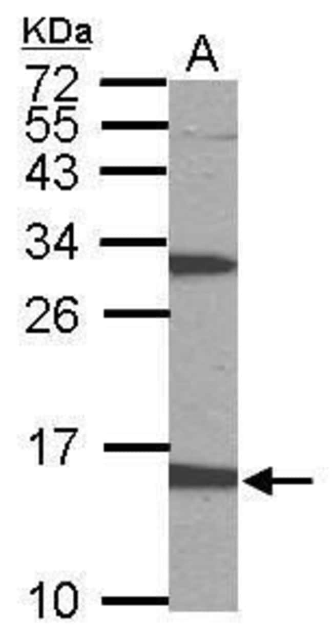 PTS Rabbit anti-Human, Mouse, Polyclonal, Invitrogen 100 µL; Unconjugated