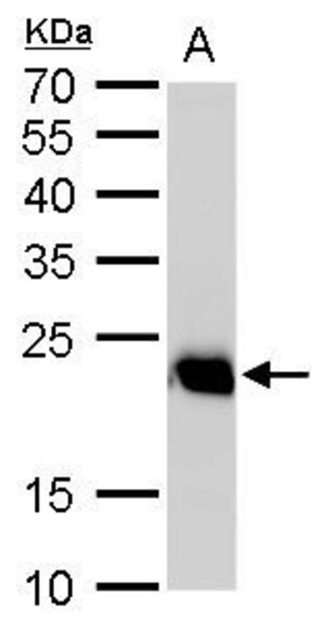 RAB6A Rabbit anti-Human, Mouse, Rat, Polyclonal, Invitrogen 100 µL;