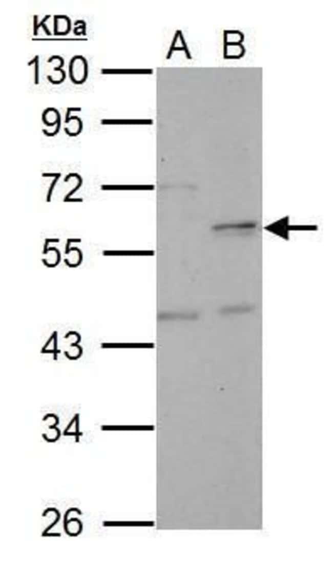 NUF2 Rabbit anti-Human, Polyclonal, Invitrogen 100 µL; Unconjugated