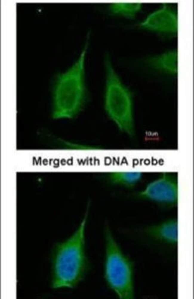 PPA1 Rabbit anti-Human, Mouse, Rat, Polyclonal, Invitrogen 100 µL;
