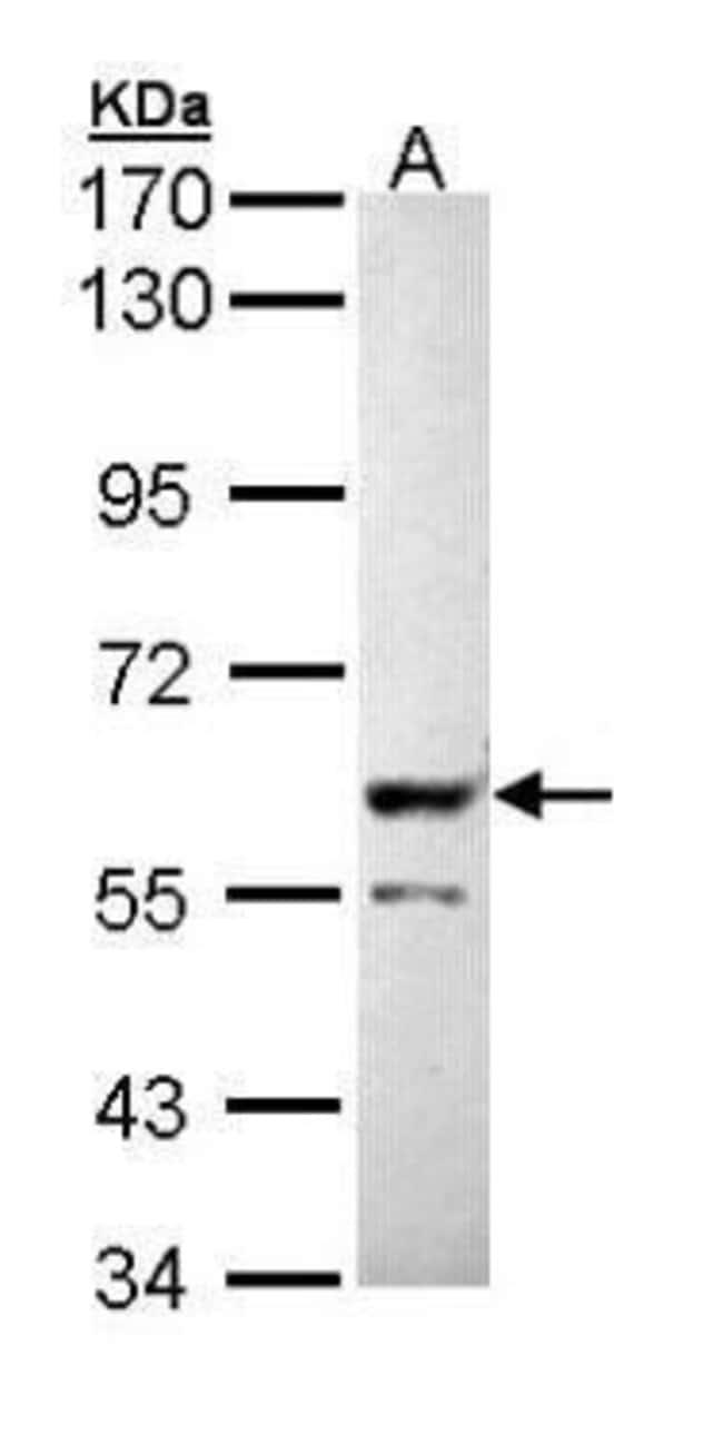 PPP3CB Rabbit anti-Human, Mouse, Polyclonal, Invitrogen 100 µL; Unconjugated