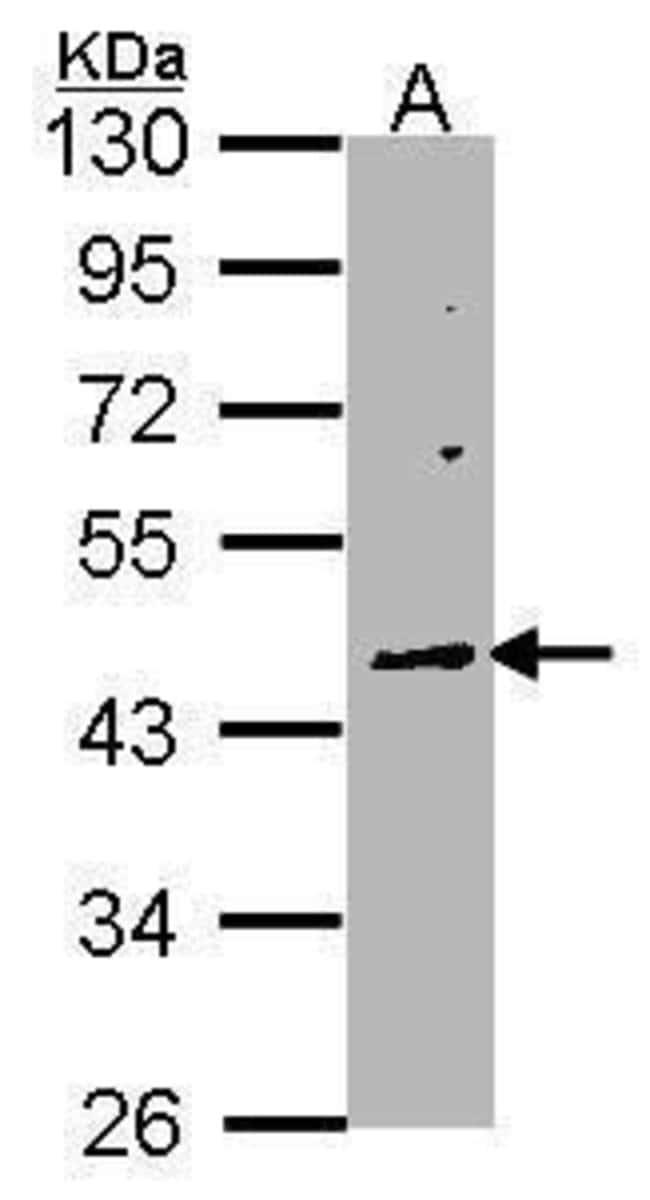WNT10A Rabbit anti-Human, Polyclonal, Invitrogen 100 µL; Unconjugated